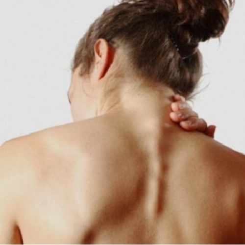 I dolori cervicali in gravidanza